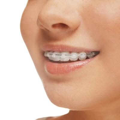 Teenage girl wearing ceramic braces