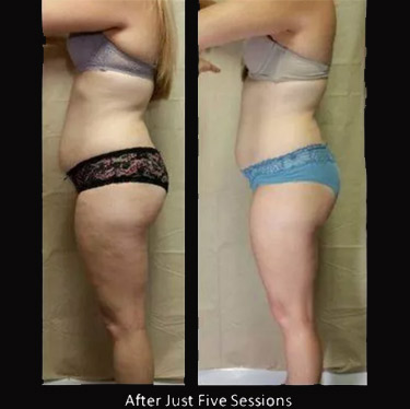 lipomelt young woman before and after