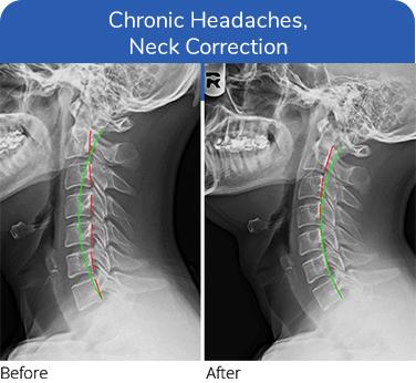 neck correction for headaches