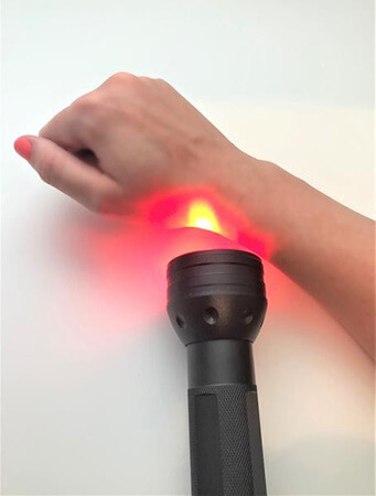 Hand with light therapy device