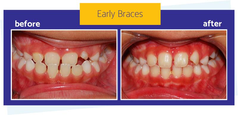 Early braces