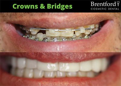 crown image7