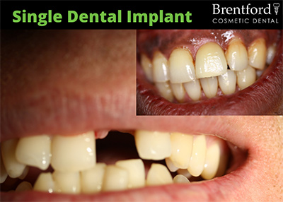 implants image1