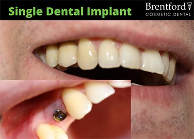 implants image2