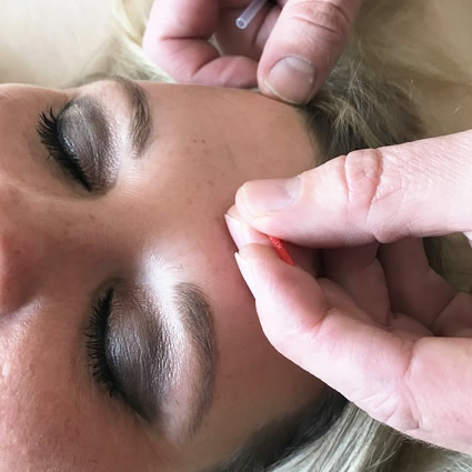 Needling on face