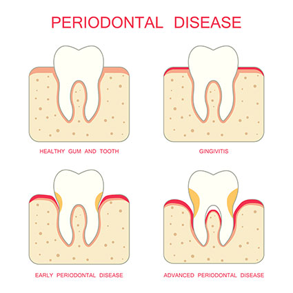 Gum disease illustration