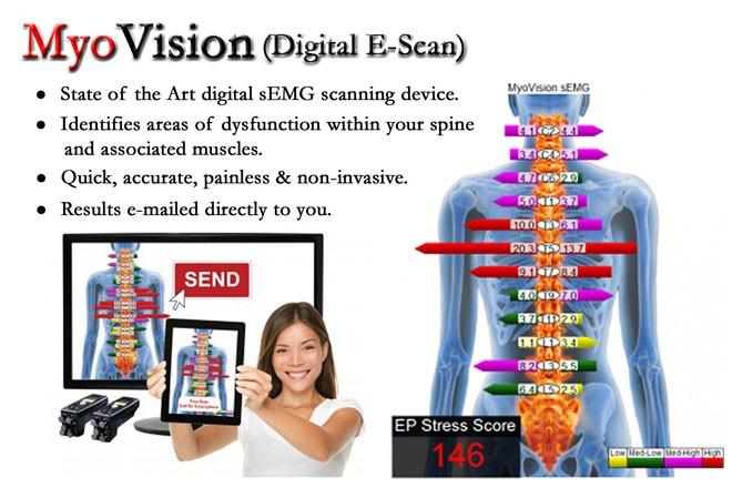 Myovision Scan
