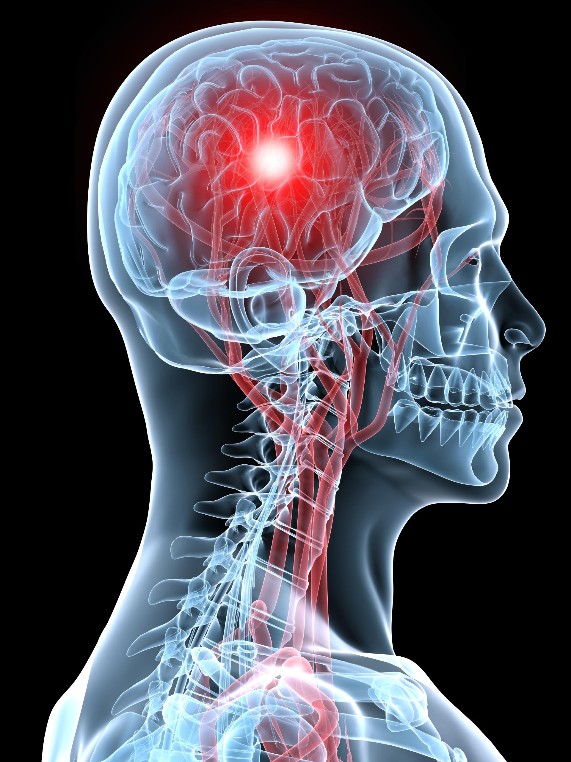 Concussion-Clinic