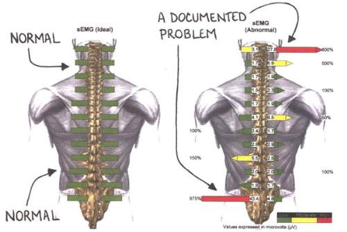 Your second visit to Go Health Chiropractic