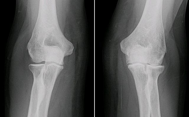 640px-XRay_ElbowOsteoarthritis_RL_AP