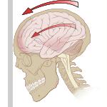 concussion, neck injury, neck pain, neckache