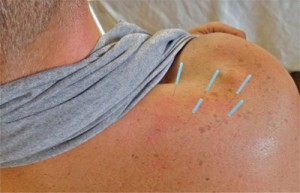 Johnston Acupuncture care is available at Schultz Chiropractic & Acupuncture