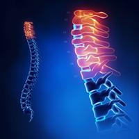 blue-spine-images