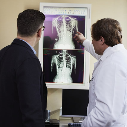 X-rays scoliosis