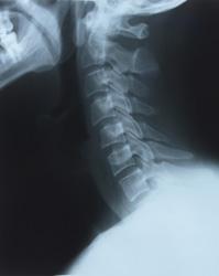 chiropractic berkeley ca