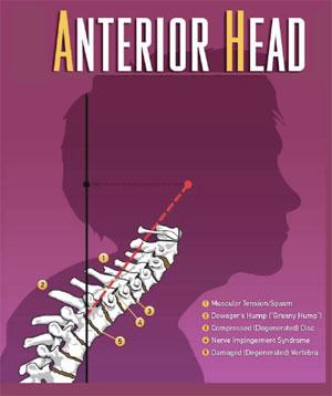 anterior-head
