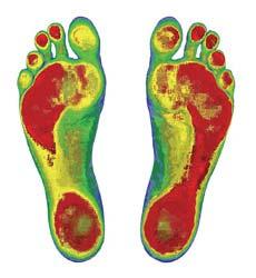 Foot Scan image