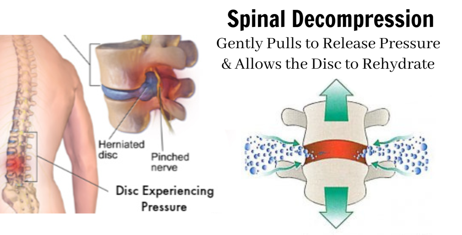 Spinal Decompression Therapy Plano TX