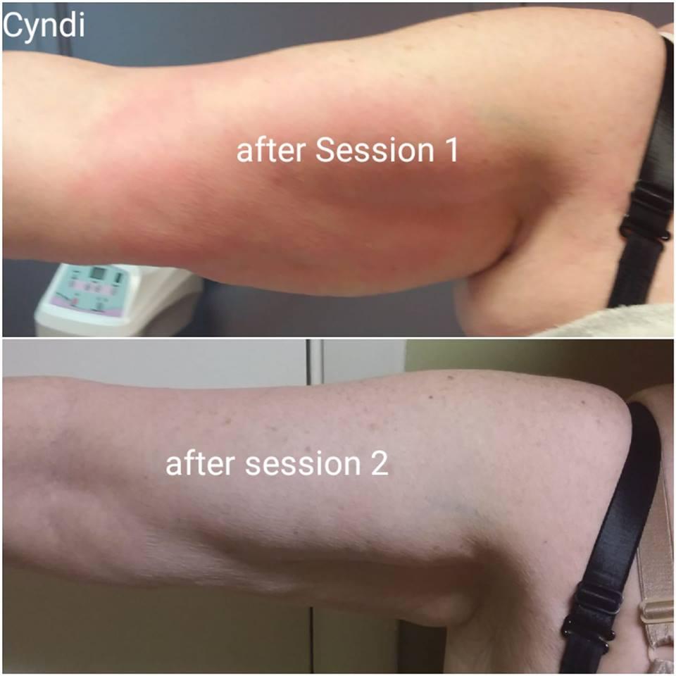 Cryoskin | Hillside, IL | Celar Chiropractic