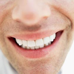 Gum Disease – What You Should Know Thumbnail Image