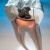 What is Gum Disease? Thumbnail Image