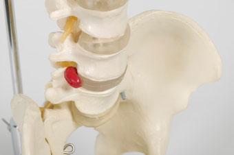 Model spine.