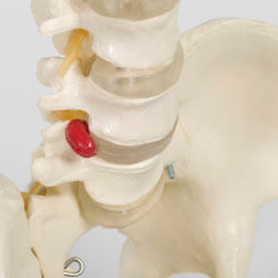 Why Choose Ongoing Chiropractic Care? Thumbnail Image
