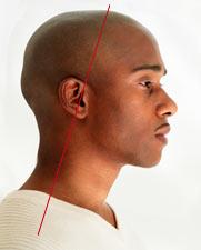 headache-relief-image