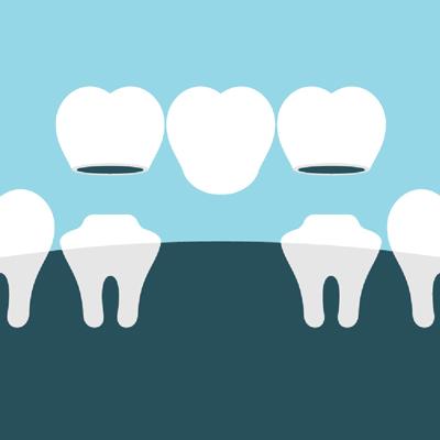 Dental crowns and bridges illustration