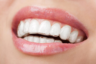 close up of aligners on teeth