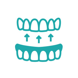Illustration of tooth replacement