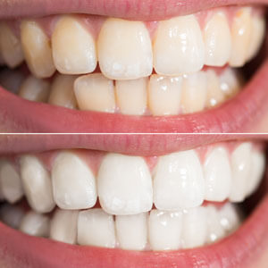 teeth comparison before and after teeth whitening