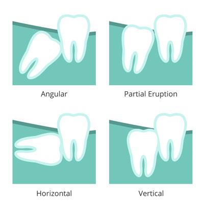 Illustration of wisdom teeth issues